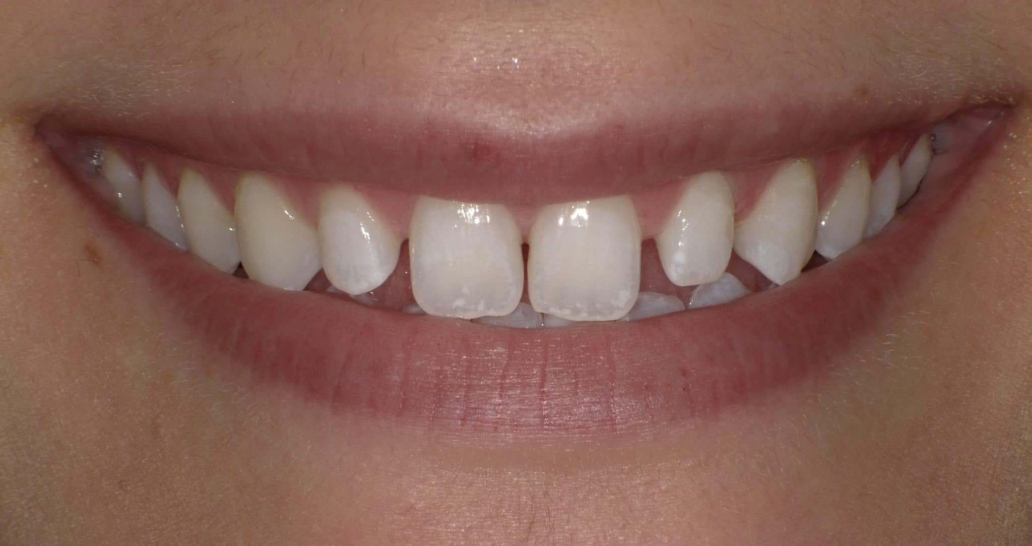 porcelain veneers new orleans