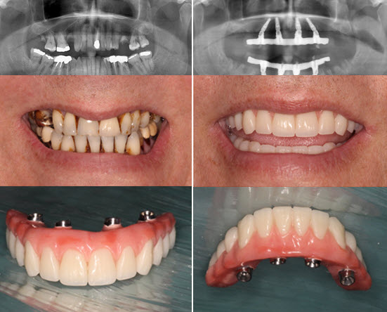 Dental Implants at Fleur de Lis Dental Care New Orleans
