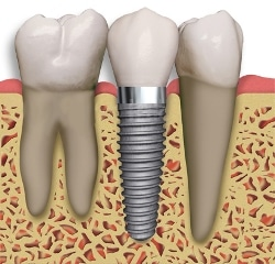dental implants new orleans | missing teeth